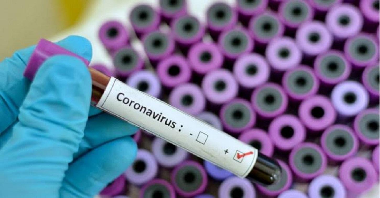 Global race to develop coronavirus vaccine underway